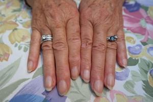 fingernaegel mit leichten rillen