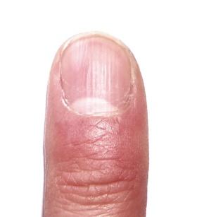 gruebchenbildung und dellen im fingernagel